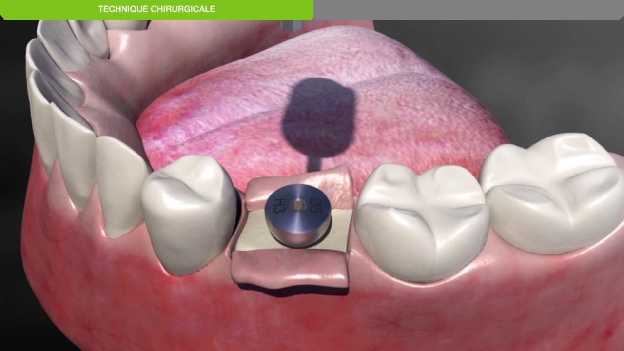 Implant dentaire Lyon : l'opération de l'implantation dentaire est-elle douloureuse ?
